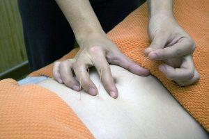 Akupunktur Aku Moxi Nadeln